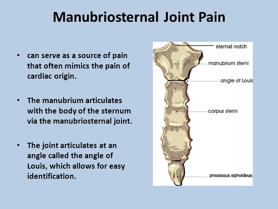 Manubriosternal Joint Pain