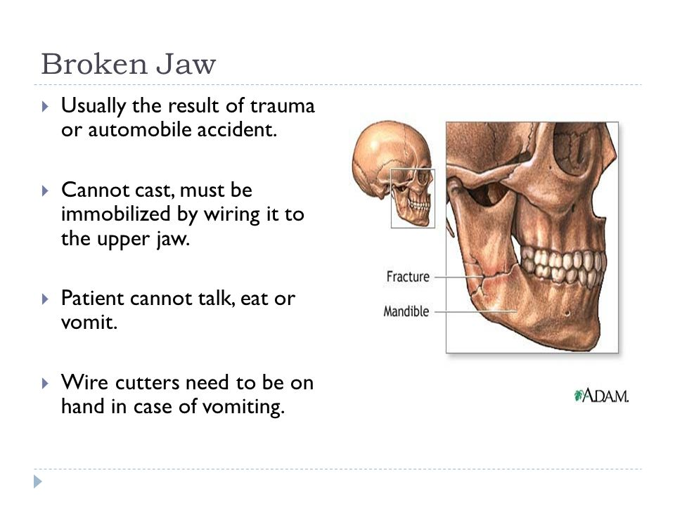 Broken Jaw Usually the result of trauma or automobile accident.