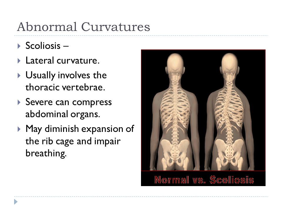 Abnormal Curvatures Scoliosis – Lateral curvature.
