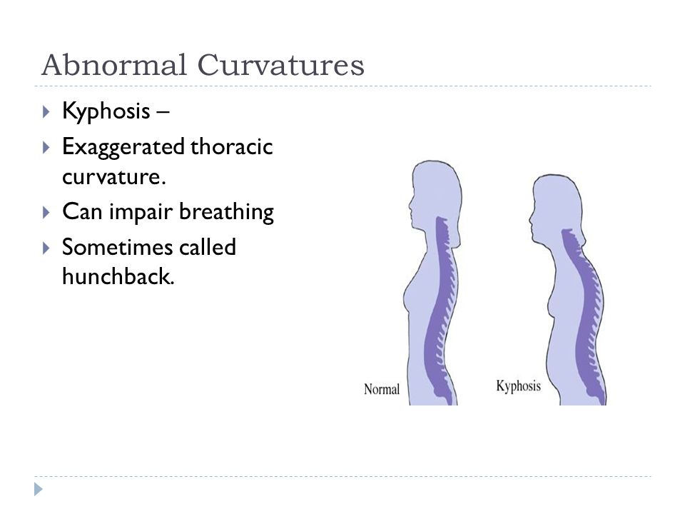 Abnormal Curvatures Kyphosis – Exaggerated thoracic curvature.