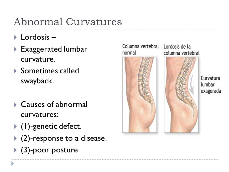 Abnormal Curvatures Lordosis – Exaggerated lumbar curvature.