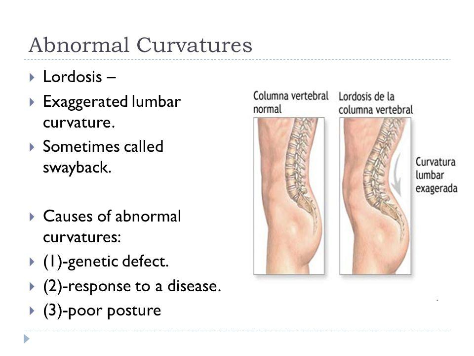 Abnormal Curvatures Lordosis – Exaggerated lumbar curvature.