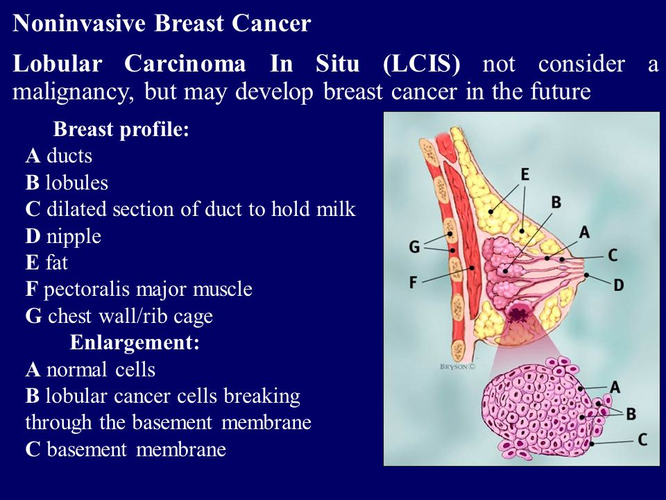 Noninvasive Breast Cancer