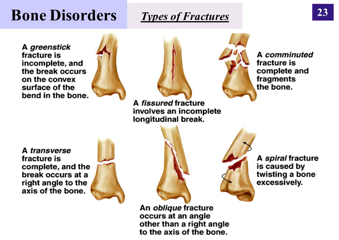 Bone Disorders Types of Fractures