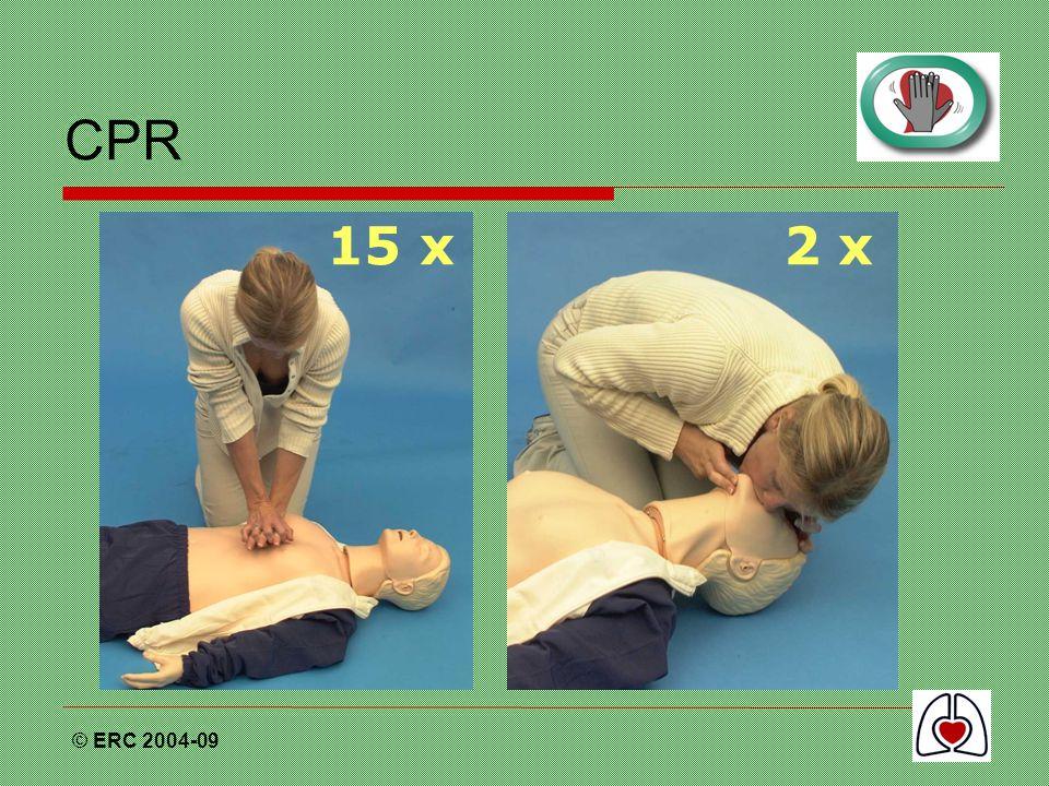 CPR 15 x 2 x © ERC 2004-09