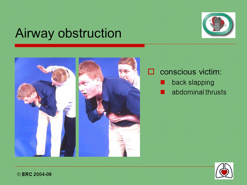 Airway obstruction conscious victim: back slapping abdominal thrusts