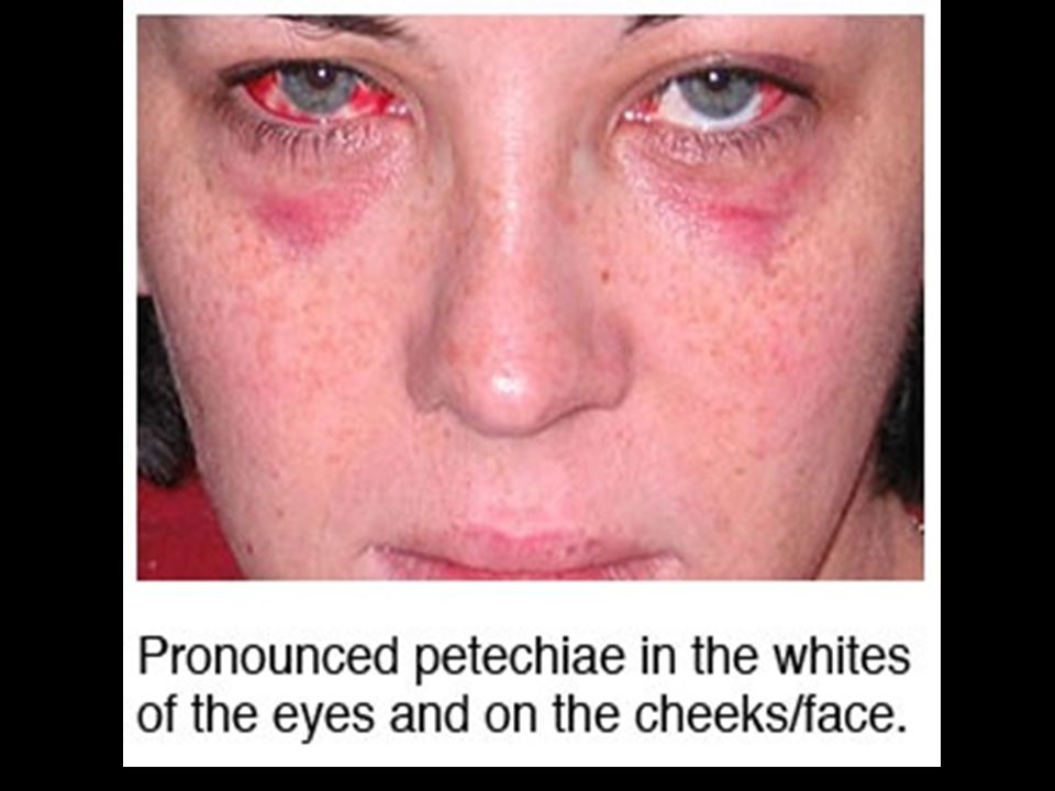 Photo showing petechiae from strangulation