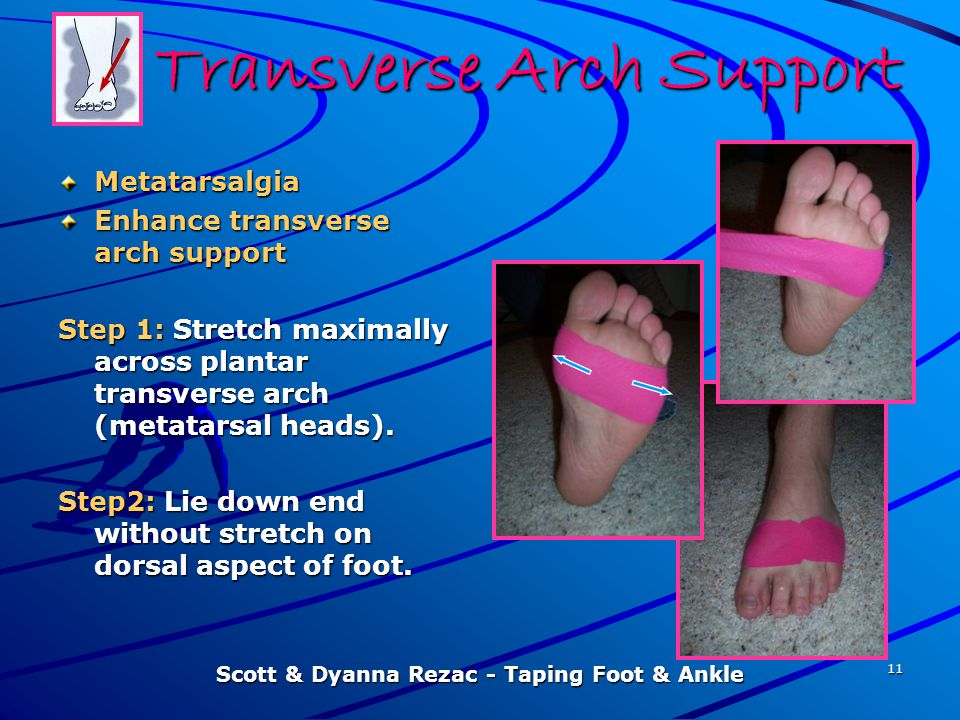 Transverse Arch Support