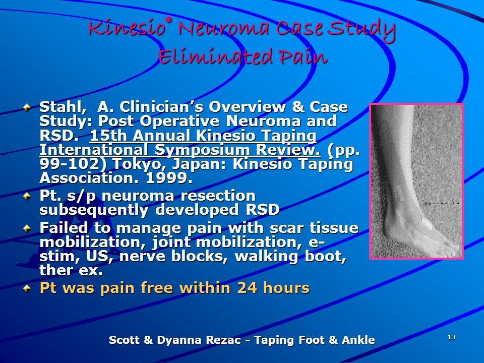 Kinesio® Neuroma Case Study Eliminated Pain