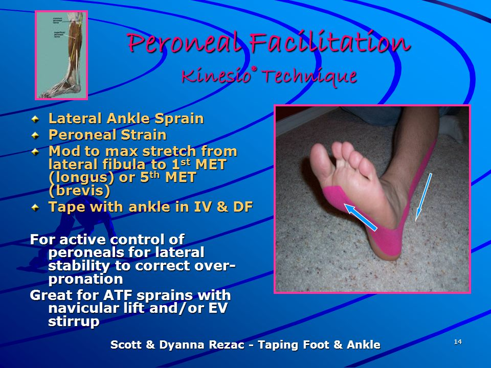 Peroneal Facilitation Kinesio® Technique