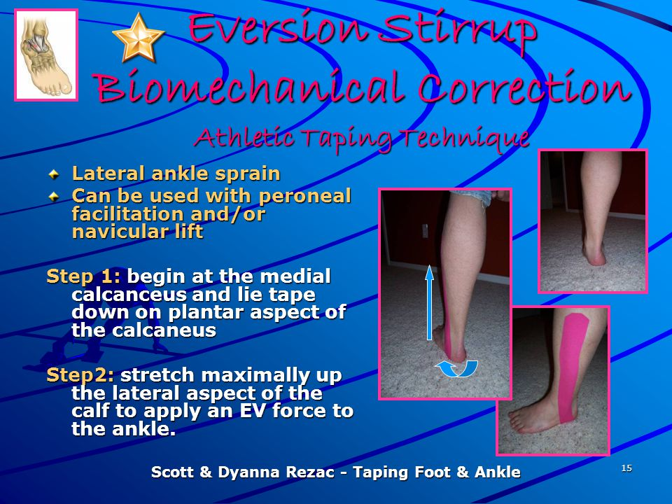 Eversion Stirrup Biomechanical Correction Athletic Taping Technique