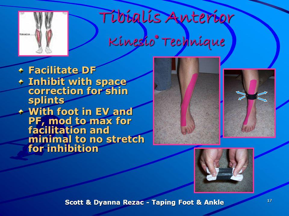 Tibialis Anterior Kinesio® Technique