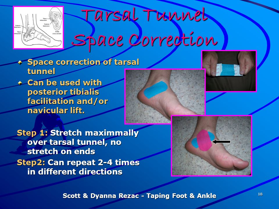 Tarsal Tunnel Space Correction