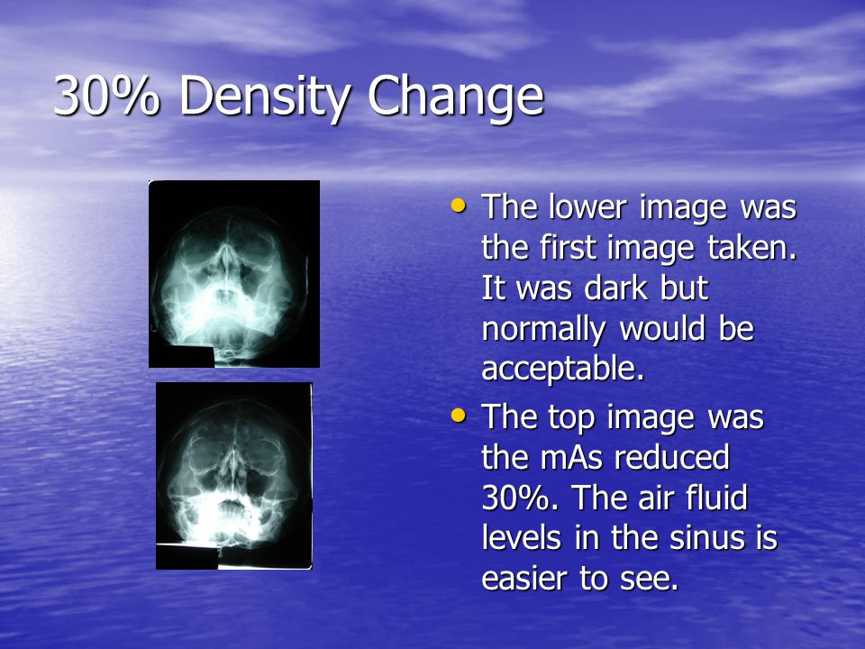 30% Density Change The lower image was the first image taken. It was dark but normally would be acceptable.