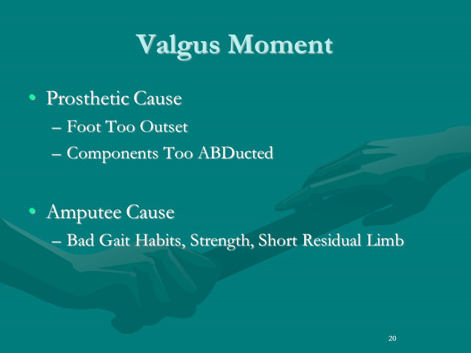 Valgus Moment Prosthetic Cause Amputee Cause Foot Too Outset