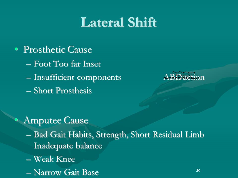 Lateral Shift Prosthetic Cause Amputee Cause Foot Too far Inset