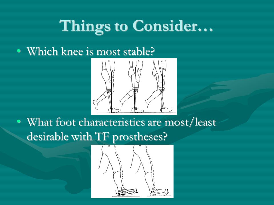 Things to Consider… Which knee is most stable