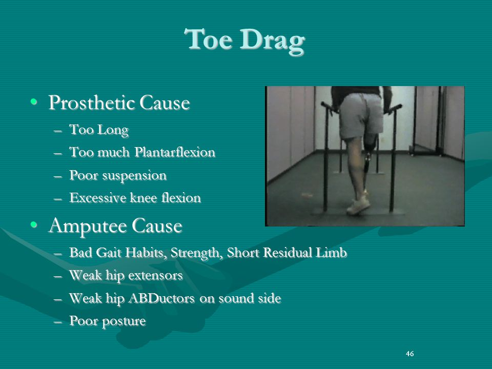 Toe Drag Prosthetic Cause Amputee Cause Too Long