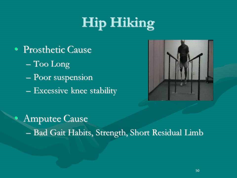 Hip Hiking Prosthetic Cause Amputee Cause Too Long Poor suspension