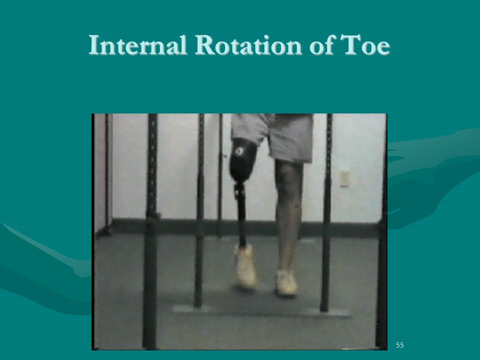 Internal Rotation of Toe