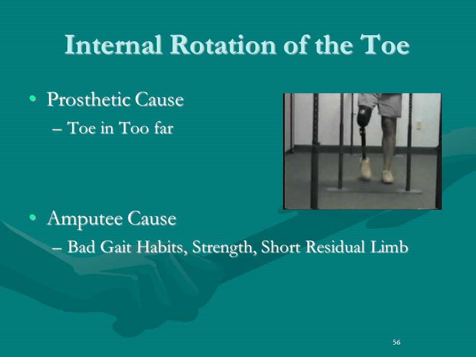 Internal Rotation of the Toe