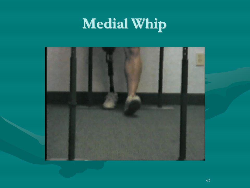 Medial Whip