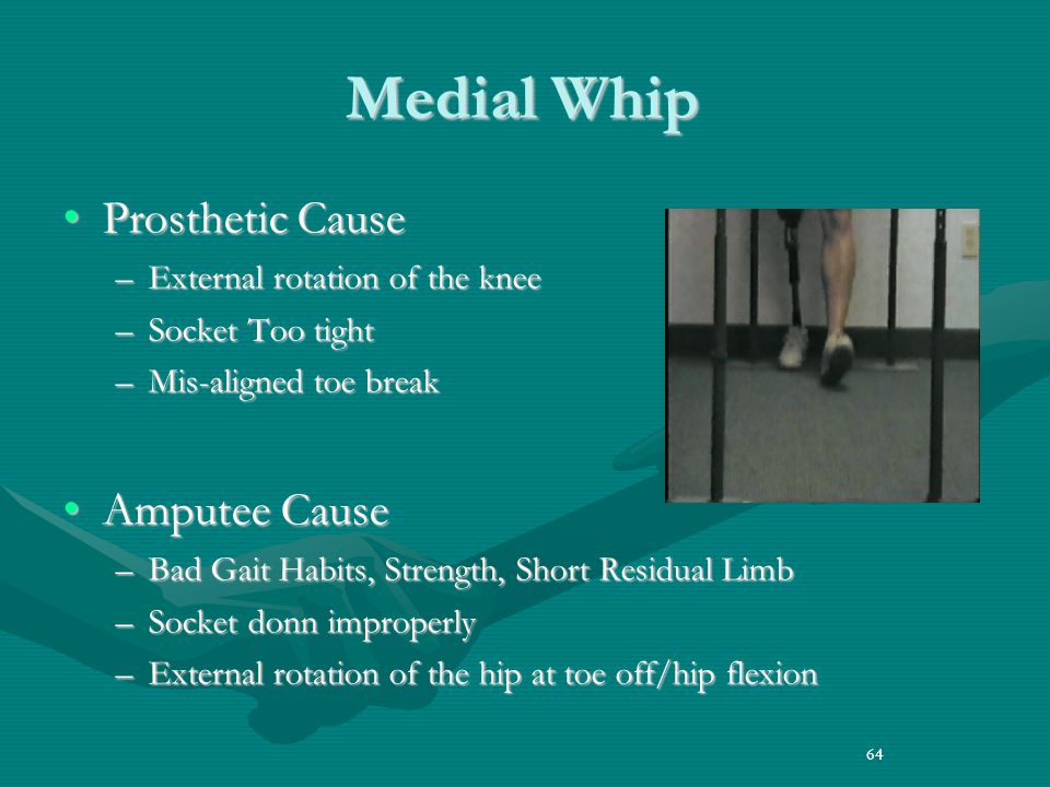 Medial Whip Prosthetic Cause Amputee Cause