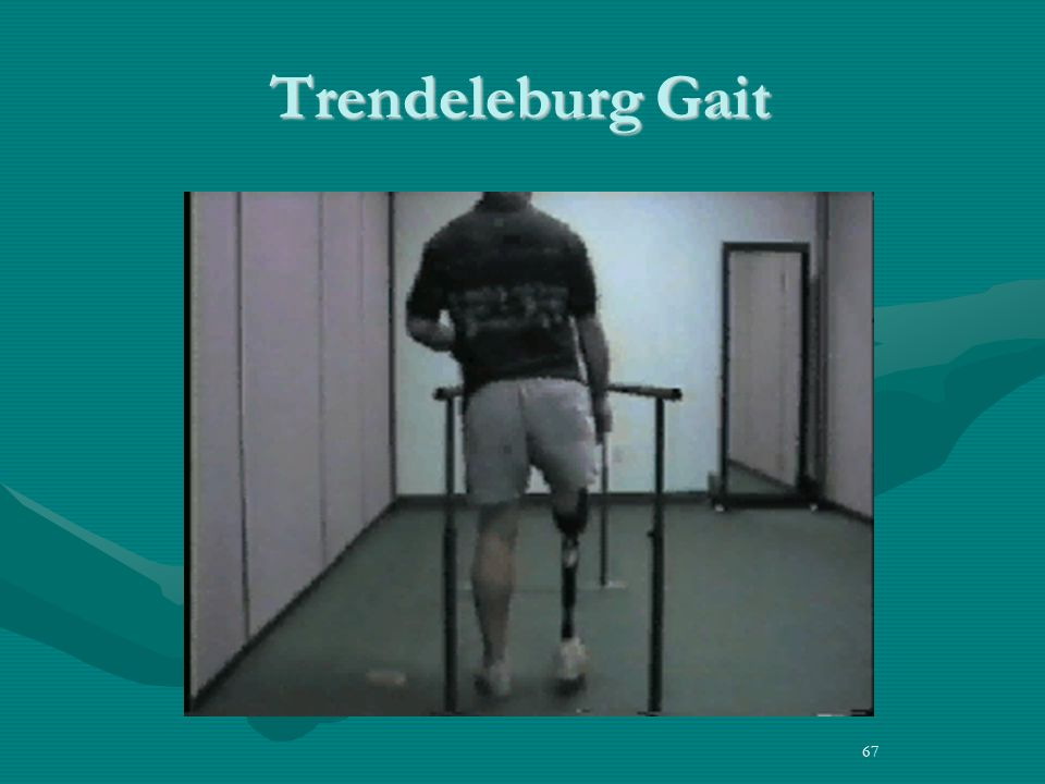how to fix trendelenburg gait