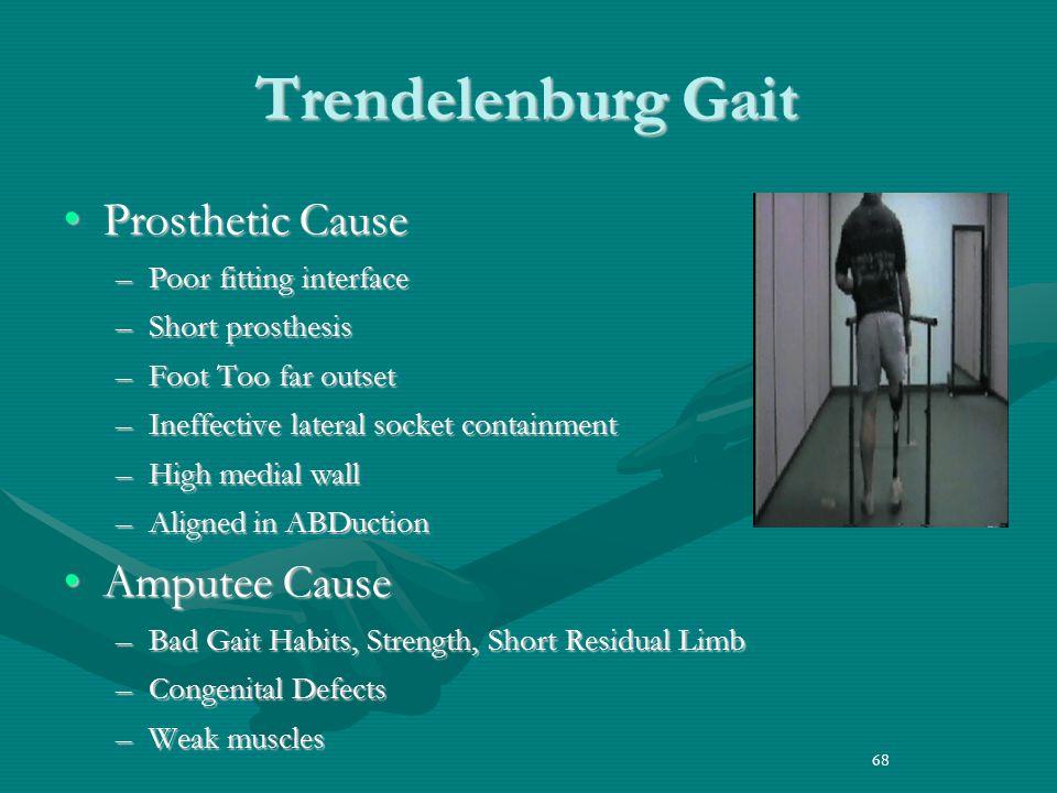 Trendelenburg Gait Prosthetic Cause Amputee Cause