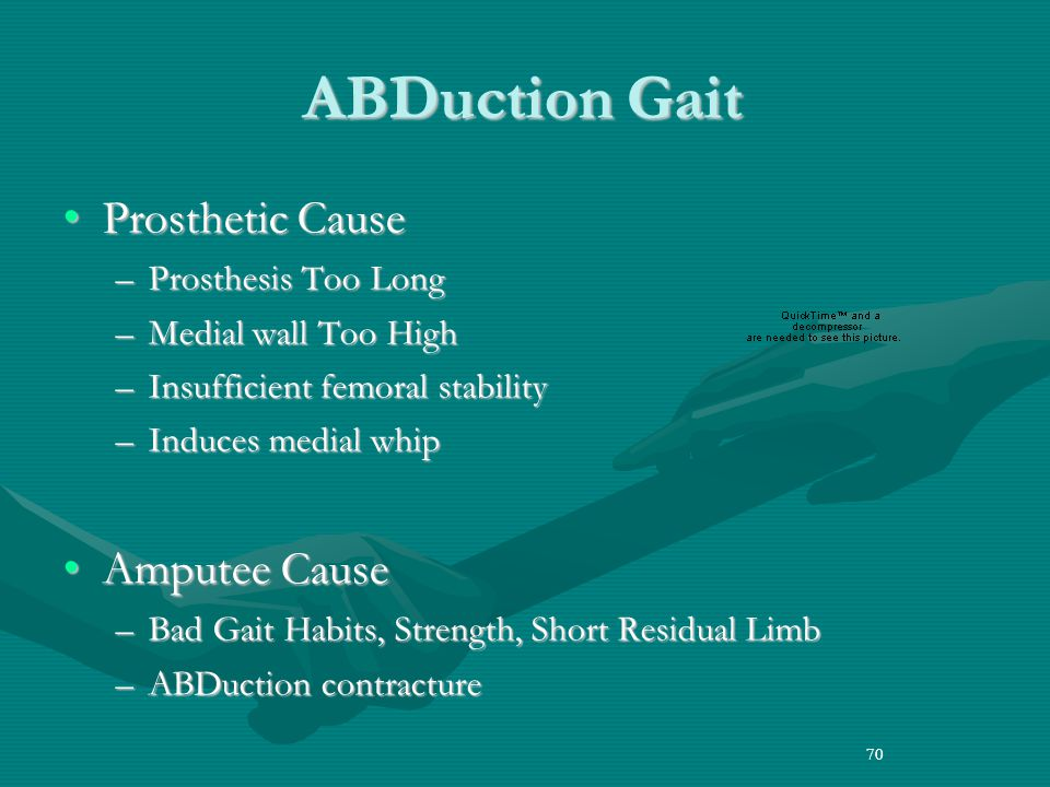 ABDuction Gait Prosthetic Cause Amputee Cause Prosthesis Too Long