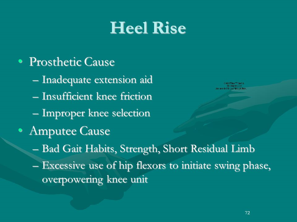 Heel Rise Prosthetic Cause Amputee Cause Inadequate extension aid