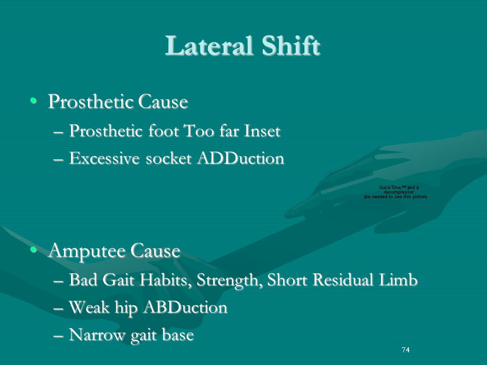 Lateral Shift Prosthetic Cause Amputee Cause