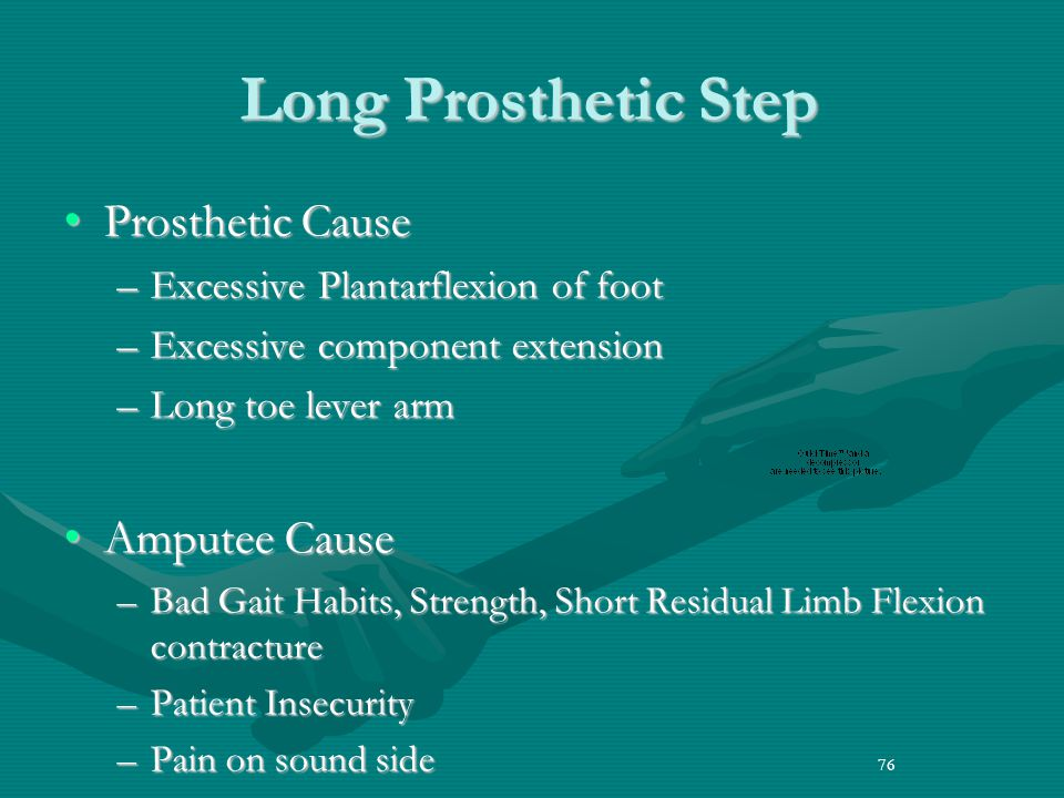 Long Prosthetic Step Prosthetic Cause Amputee Cause