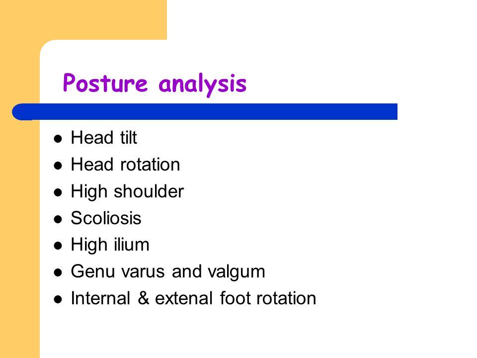 Posture analysis Head tilt Head rotation High shoulder Scoliosis