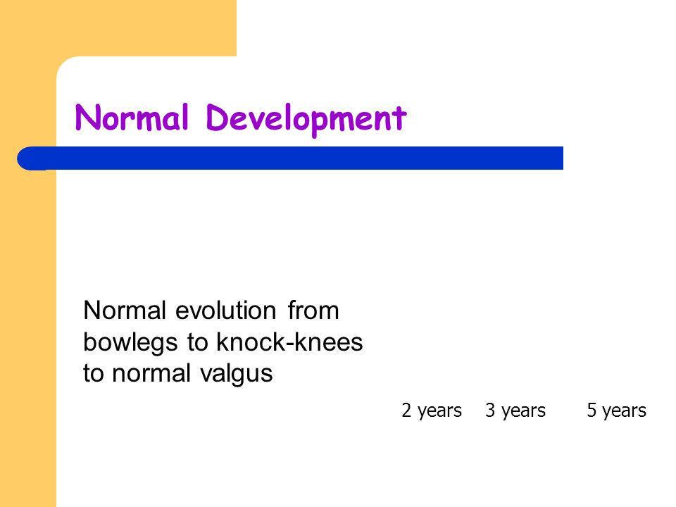 Normal Development Normal evolution from bowlegs to knock-knees to normal valgus.