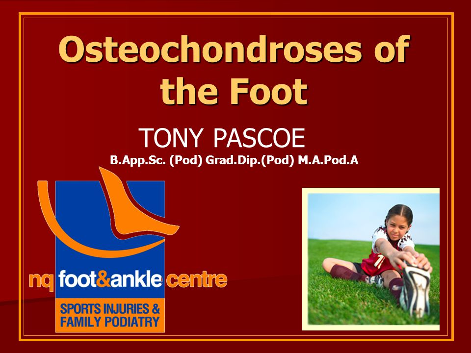 Osteochondroses of the Foot