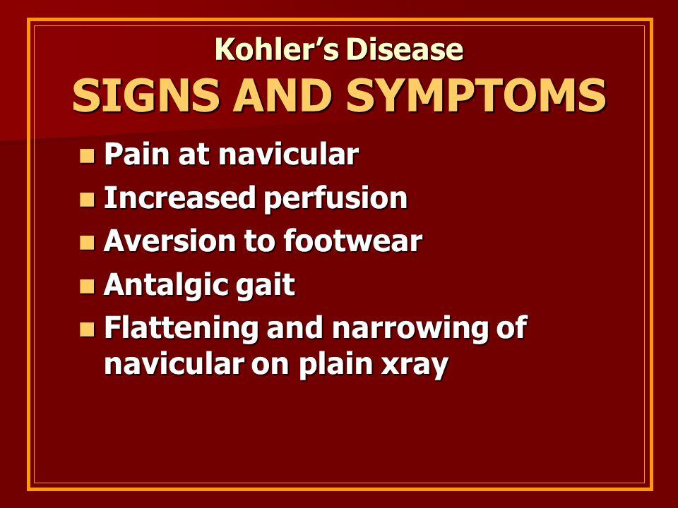 Kohler's Disease SIGNS AND SYMPTOMS