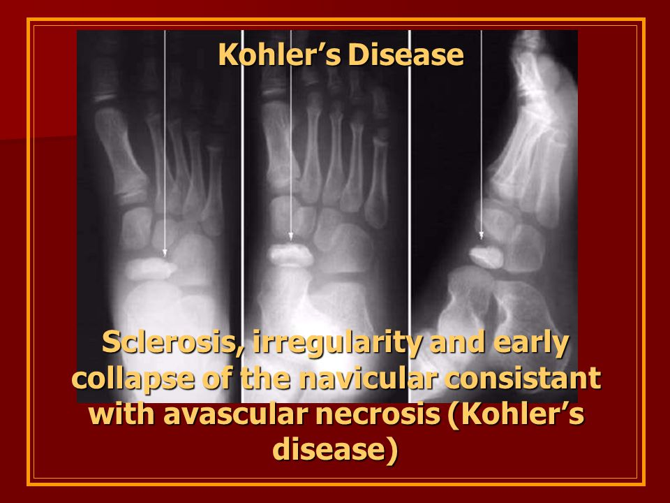 Kohler's Disease Sclerosis, irregularity and early collapse of the navicular consistant with avascular necrosis (Kohler's disease)