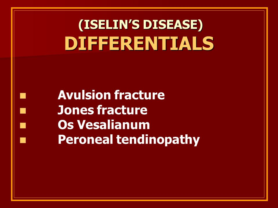 DIFFERENTIALS (ISELIN'S DISEASE) Avulsion fracture Jones fracture
