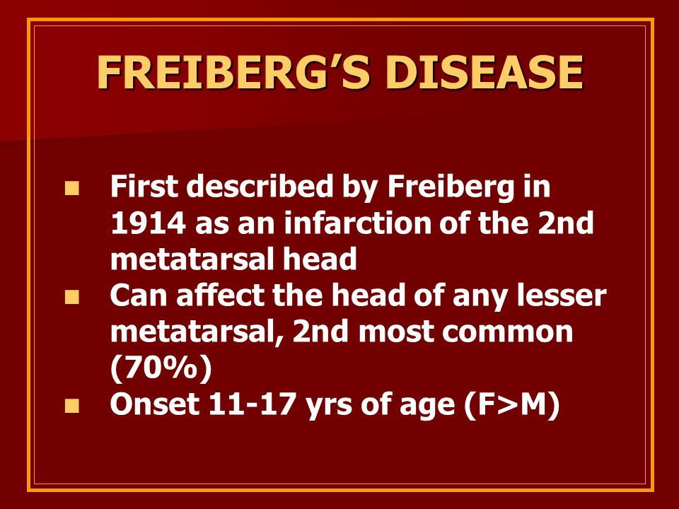 FREIBERG'S DISEASE First described by Freiberg in 1914 as an infarction of the 2nd metatarsal head.