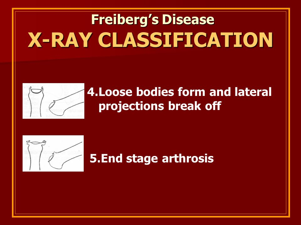 X-RAY CLASSIFICATION Freiberg's Disease