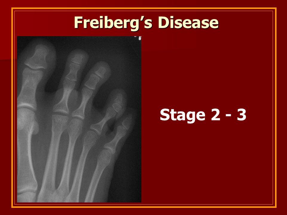 Freiberg's Disease Stage 2 - 3