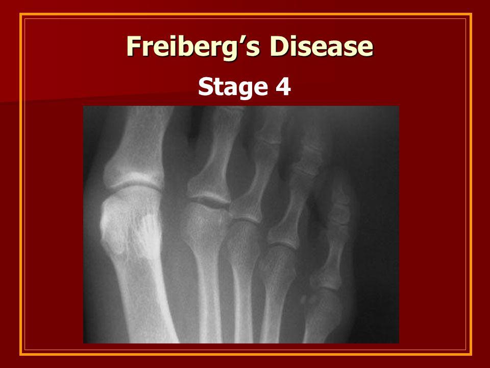 Freiberg's Disease Stage 4