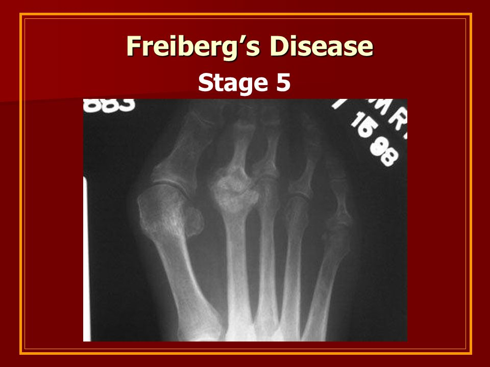 Freiberg's Disease Stage 5
