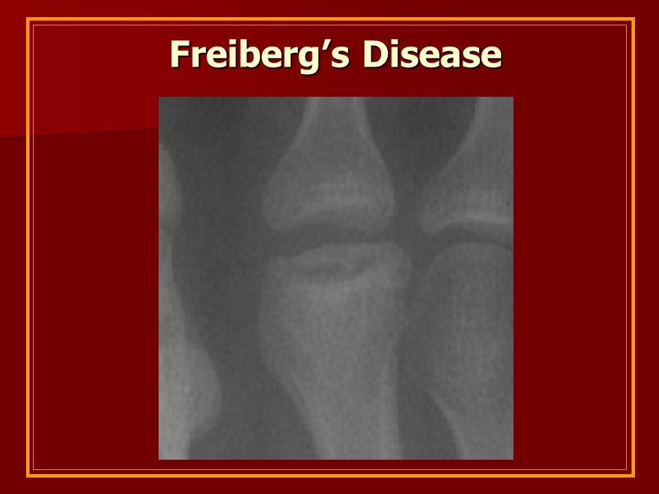 Freiberg's Disease