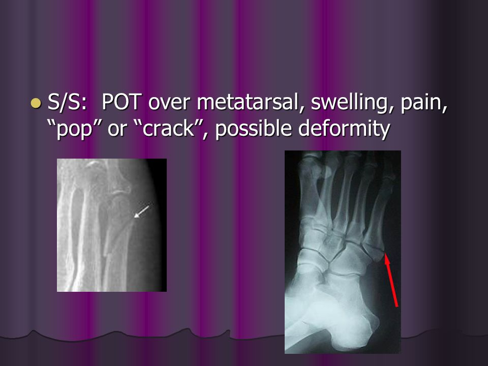 S/S: POT over metatarsal, swelling, pain, pop or crack , possible deformity