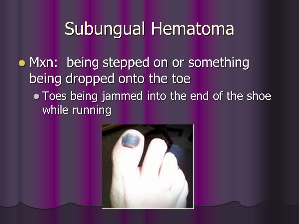 Subungual Hematoma Mxn: being stepped on or something being dropped onto the toe.