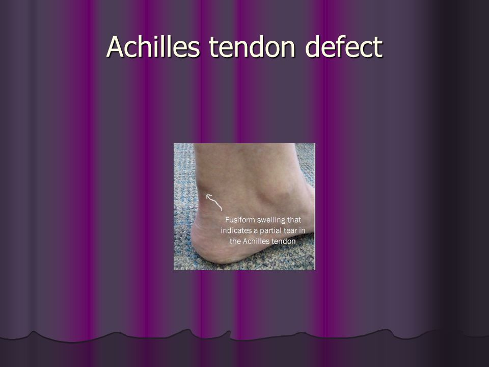 Achilles tendon defect
