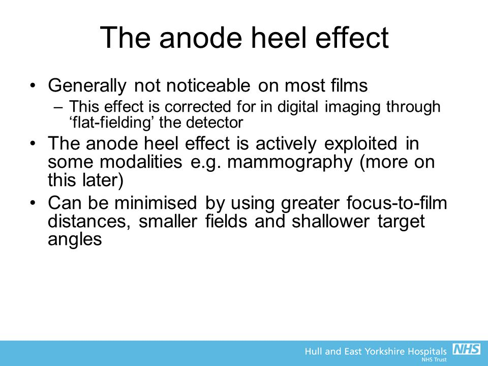 The anode heel effect Generally not noticeable on most films