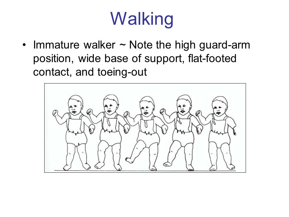 Walking Immature walker ~ Note the high guard-arm position, wide base of support, flat-footed contact, and toeing-out.